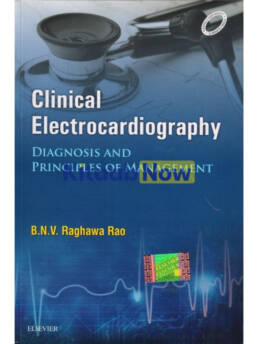Clinical Electrocardiography: Dignosis And Principles Of Management